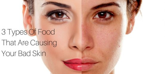 3 Types Of Food That Are Causing Your Bad Skin