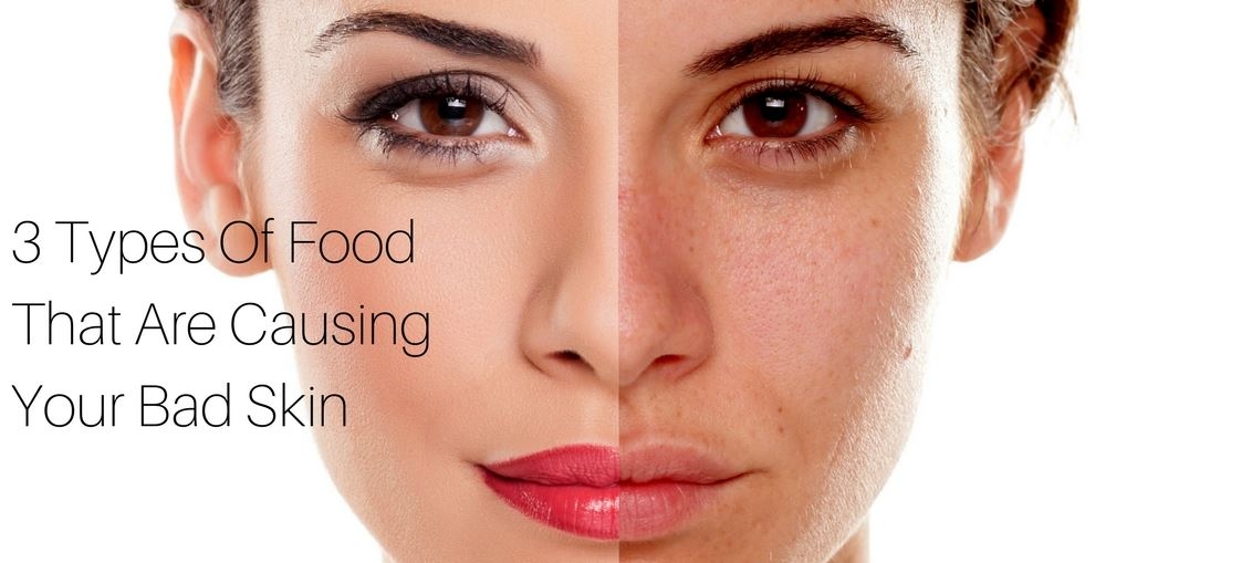3 Types Of Food That Are Causing Your Bad Skin - for the businesswoman